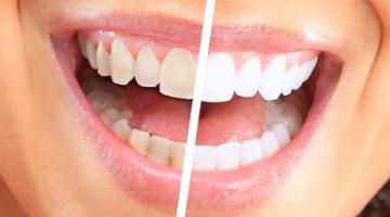 Gabinet Stomatologiczny Lublin, Dentysta Lublin - Dental Evolution